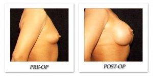 phoca_thumb_l_hodnett-breast-augmentation-patient10-side