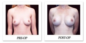 phoca_thumb_l_hodnett-breast-augmentation-patient11-front