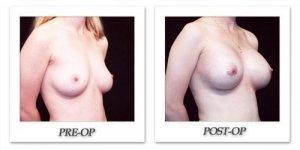 phoca_thumb_l_hodnett-breast-augmentation-patient11-oblique