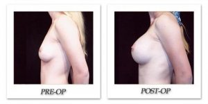 phoca_thumb_l_hodnett-breast-augmentation-patient11-side