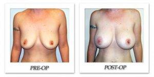 phoca_thumb_l_hodnett-breast-augmentation-patient13-front
