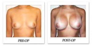 phoca_thumb_l_hodnett-breast-augmentation-patient14-front