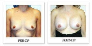 phoca_thumb_l_hodnett-breast-augmentation-patient2-front