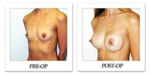 phoca_thumb_l_hodnett-breast-augmentation-patient3-oblique