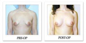phoca_thumb_l_hodnett-breast-augmentation-patient4-front