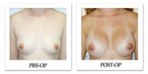 phoca_thumb_l_hodnett-breast-augmentation-patient6-front