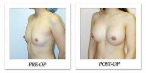 phoca_thumb_l_hodnett-breast-augmentation-patient7-oblique