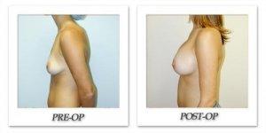 phoca_thumb_l_hodnett-breast-augmentation-patient8-side