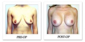 phoca_thumb_l_hodnett-breast-augmentation-patient9-front