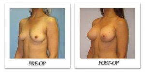 phoca_thumb_l_hsu-breast-augmentation-002