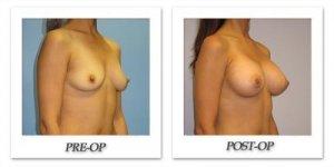 phoca_thumb_l_hsu-breast-augmentation-003