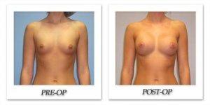 phoca_thumb_l_hsu-breast-augmentation-004