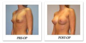 phoca_thumb_l_hsu-breast-augmentation-005
