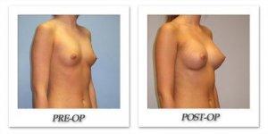 phoca_thumb_l_hsu-breast-augmentation-006