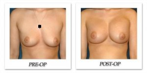 phoca_thumb_l_hsu-breast-augmentation-007