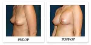 phoca_thumb_l_hsu-breast-augmentation-008
