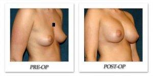 phoca_thumb_l_hsu-breast-augmentation-009