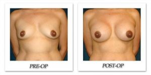 phoca_thumb_l_hsu-breast-augmentation-010