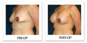 phoca_thumb_l_hsu-breast-augmentation-011
