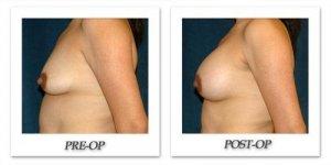 phoca_thumb_l_hsu-breast-augmentation-012