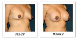 phoca_thumb_l_hsu-breast-augmentation-013
