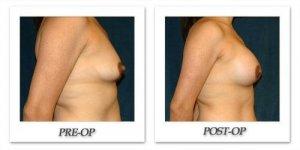 phoca_thumb_l_hsu-breast-augmentation-014