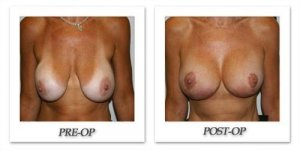 phoca_thumb_l_image0132