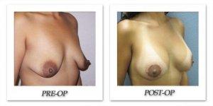 phoca_thumb_l_image0161