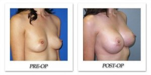 phoca_thumb_l_image0201