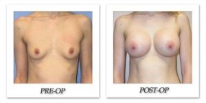 phoca_thumb_l_mandris-breast-augmentation-001