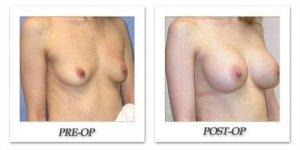 phoca_thumb_l_mandris-breast-augmentation-002
