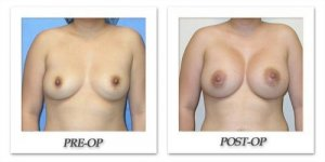 phoca_thumb_l_mandris-breast-augmentation-003