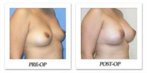 phoca_thumb_l_mandris-breast-augmentation-004