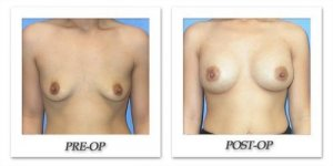 phoca_thumb_l_mandris-breast-augmentation-005