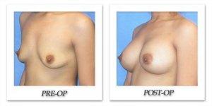 phoca_thumb_l_mandris-breast-augmentation-006