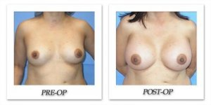 phoca_thumb_l_mandris-breast-augmentation-007