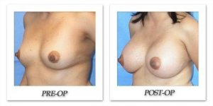 phoca_thumb_l_mandris-breast-augmentation-008