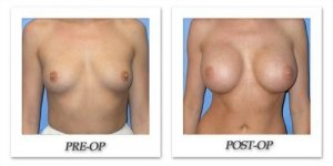 phoca_thumb_l_mandris-breast-augmentation-009