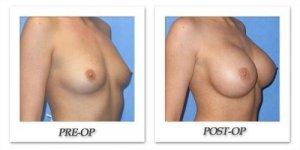 phoca_thumb_l_mandris-breast-augmentation-010