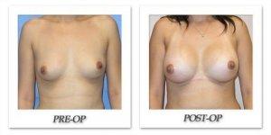 phoca_thumb_l_mandris-breast-augmentation-011