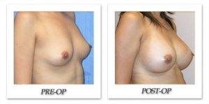 phoca_thumb_l_mandris-breast-augmentation-012