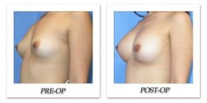 phoca_thumb_l_mandris-breast-augmentation-014