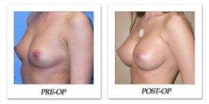 phoca_thumb_l_mandris-breast-augmentation-016