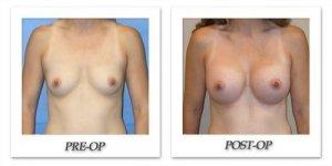 phoca_thumb_l_mandris-breast-augmentation-017