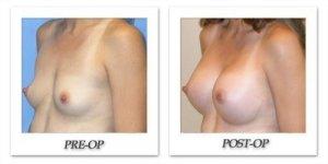 phoca_thumb_l_mandris-breast-augmentation-018