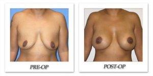 phoca_thumb_l_mandris-breast-augmentation-019