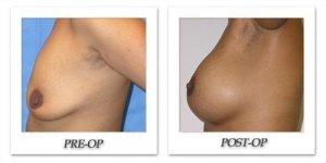 phoca_thumb_l_mandris-breast-augmentation-020