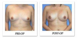 phoca_thumb_l_mandris-breast-augmentation-021