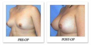 phoca_thumb_l_mandris-breast-augmentation-022