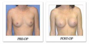 phoca_thumb_l_mandris-breast-augmentation-025